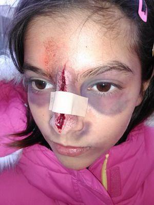 maquillaje de halloween heridas