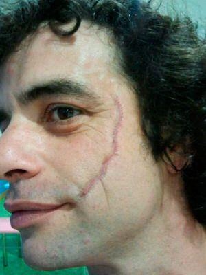 maquillaje de halloween cicatriz